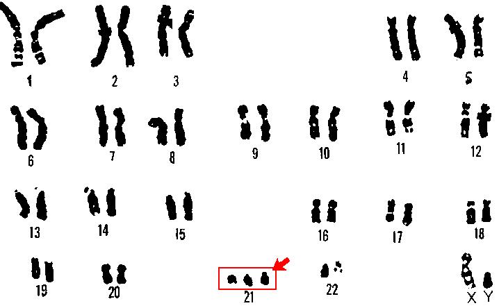 ダウン症と染色体