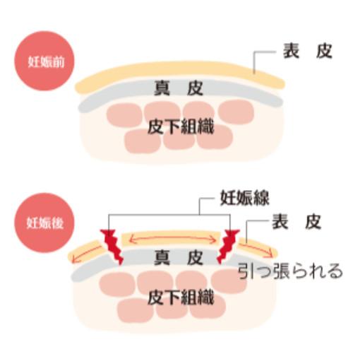 妊娠線説明